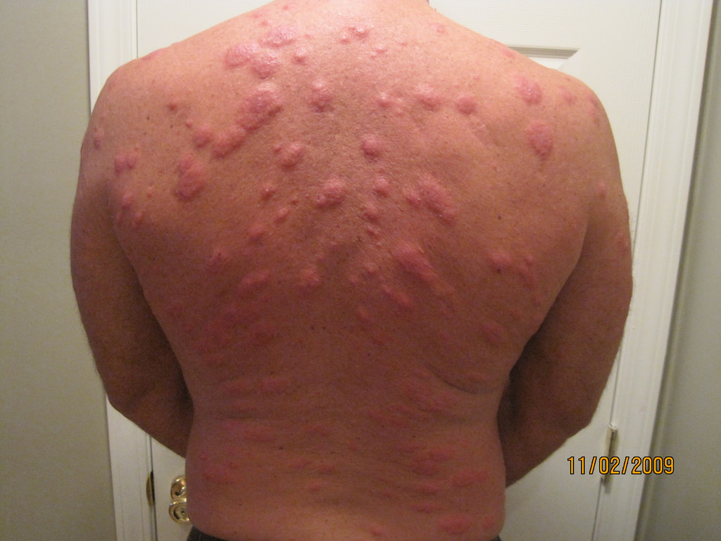 Allergic Reaction To Bed Bugs Picture