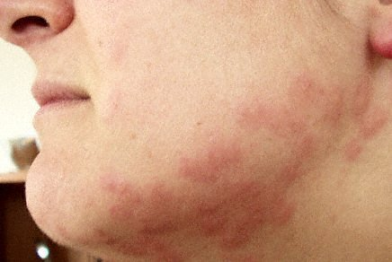 Picture Of Bed Bugs Bites On Human Face