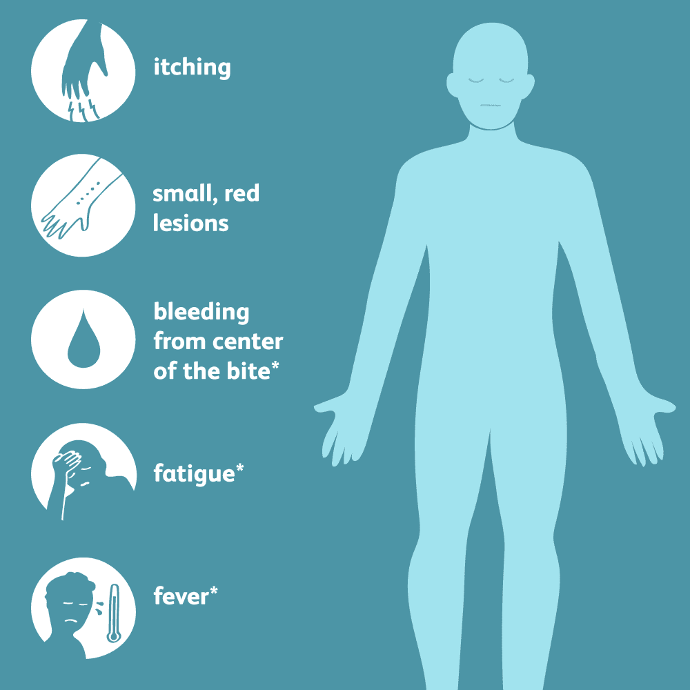 symptoms of mosquito bites and bed bug bites